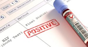 Jak cannabis pomaga ludziom chorym na HIV?, kanabis.info